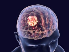 دماغی سرطان کو روکنے والی ویکسین پہلے طبی مرحلے میں کامیاب