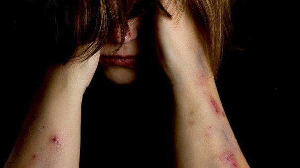 Mujer con cara oculta y heridas en los brazos.