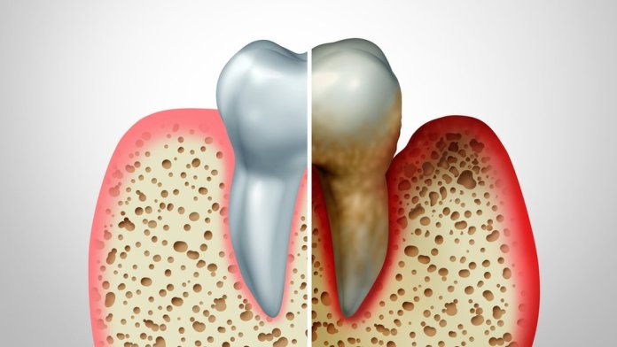 On the left a normal tooth, on the right one covered with plaque that has caused inflation in the gums.