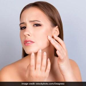 جلد کی لالی: جلن والی جلد کو سکون بخشنے کے لئے ماہر کے تجویز کردہ علاج آزمائیں