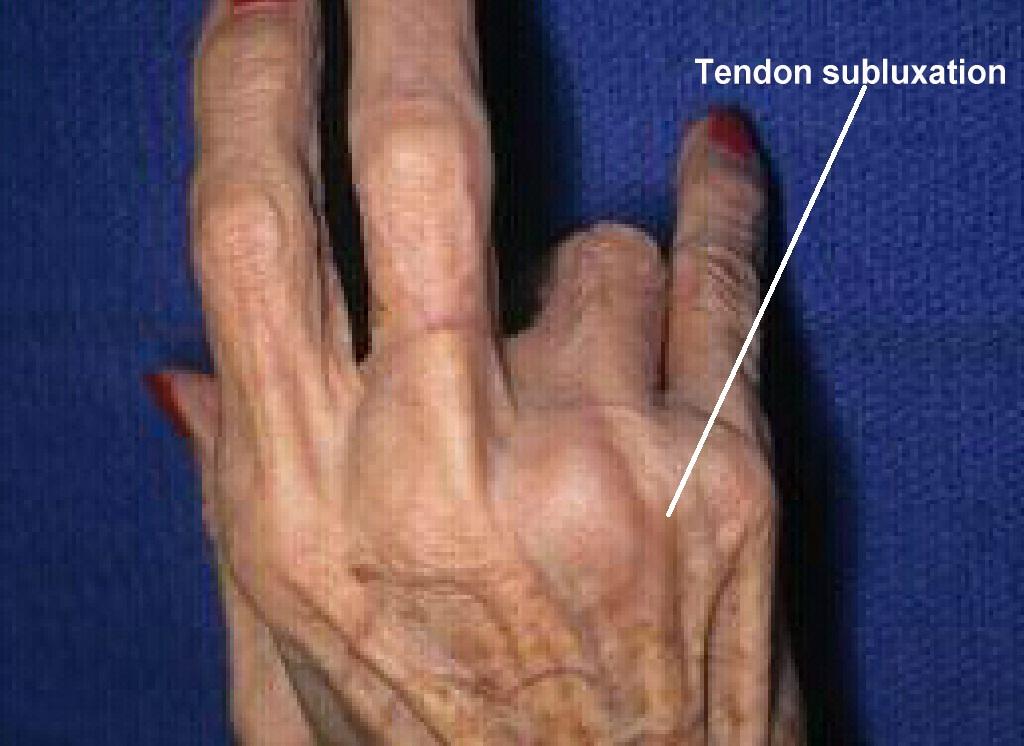 finger tendon surgery