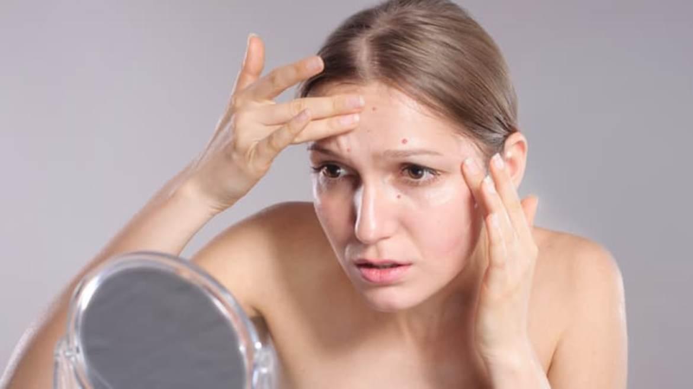 Řeč těla: Jaké potíže nám odkrývá akné?