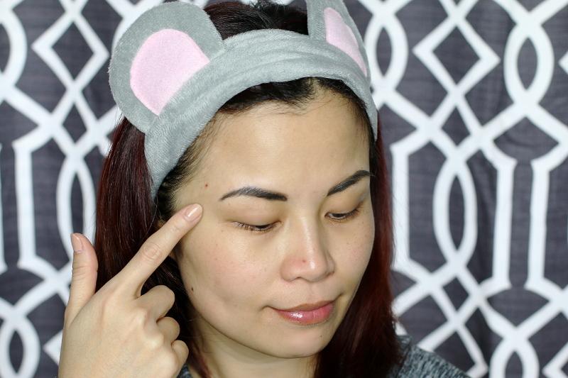 acne-scar-breakouts-6