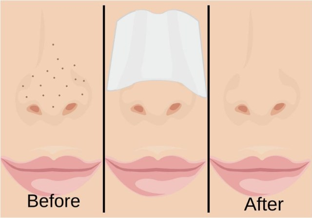The Truth about Blackheads