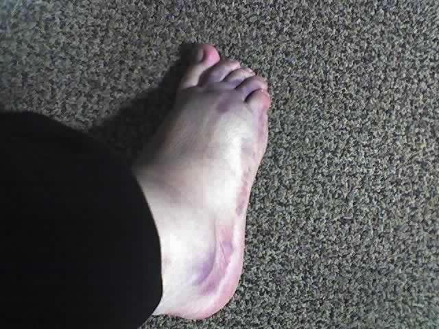 My hurt foot | Yep, this is what a bad sprain looks like ...