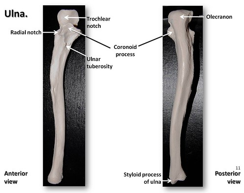 Ulna Anterior And Posterior Views With Labels