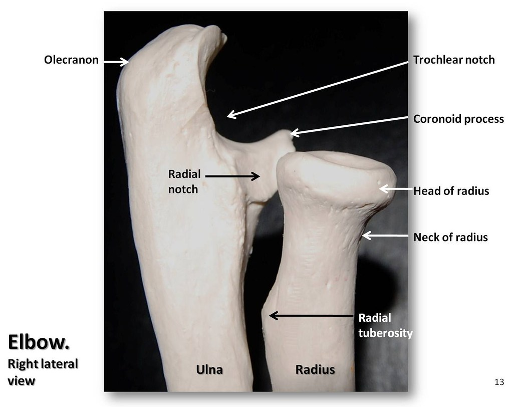 Bones Of The Elbow Lateral View With Labels