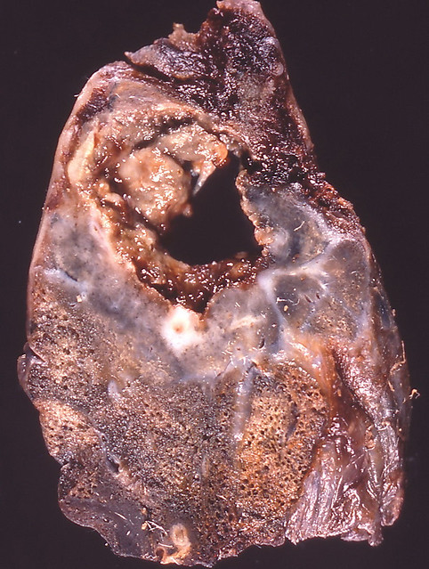 Lung Abscess Flickr Photo Sharing