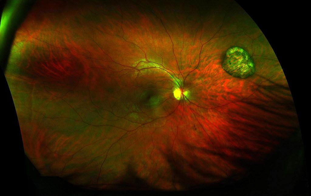 Chorioretinal Atrophy A Scar On Me Retina Collin Mel