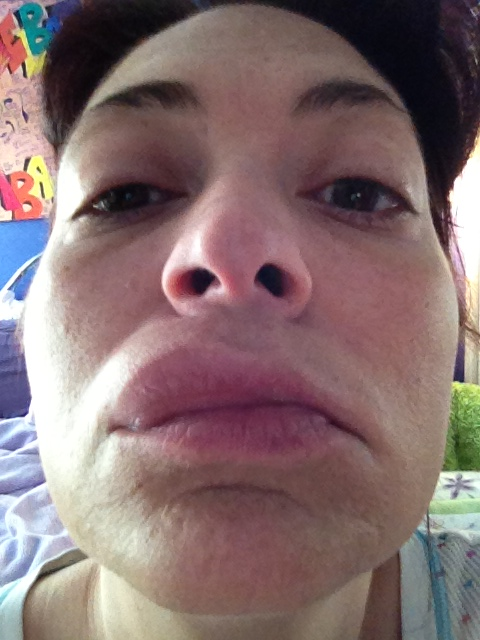 Severe allergic reaction - again. | Meleah Rebeccah | Flickr