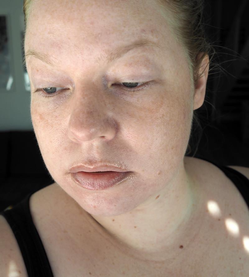 acnatac akne iho skin acne