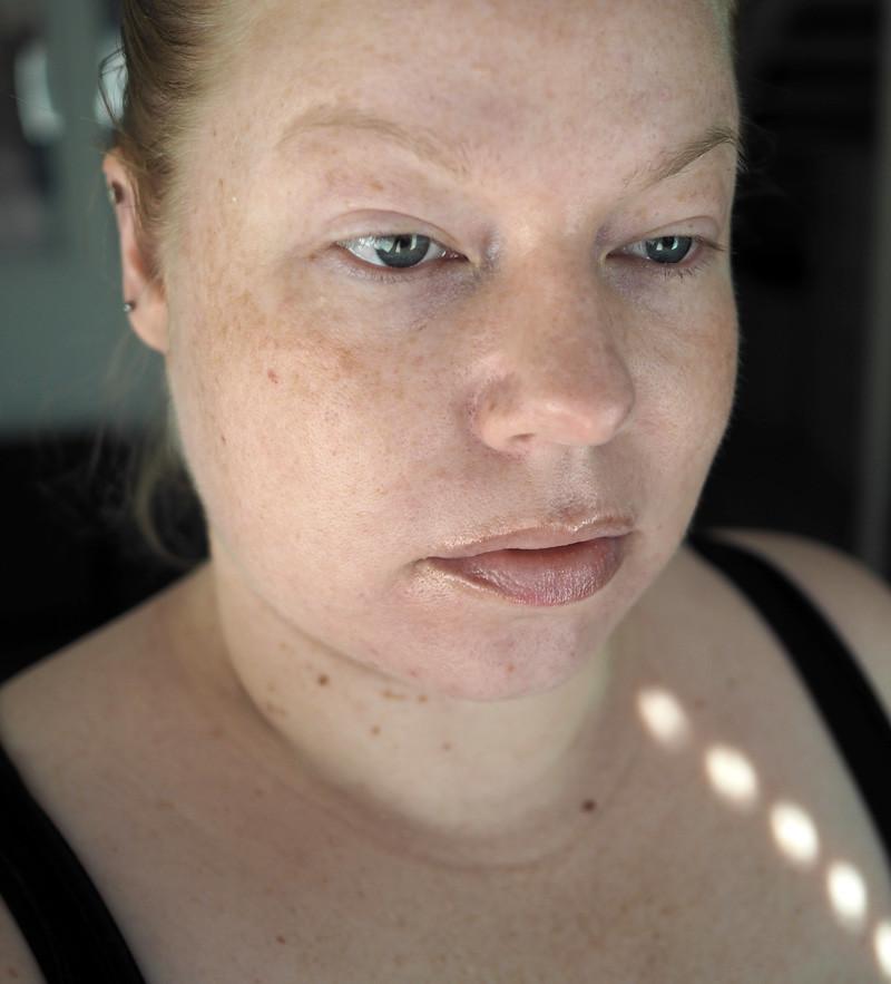 acnatac iho skin akne acne