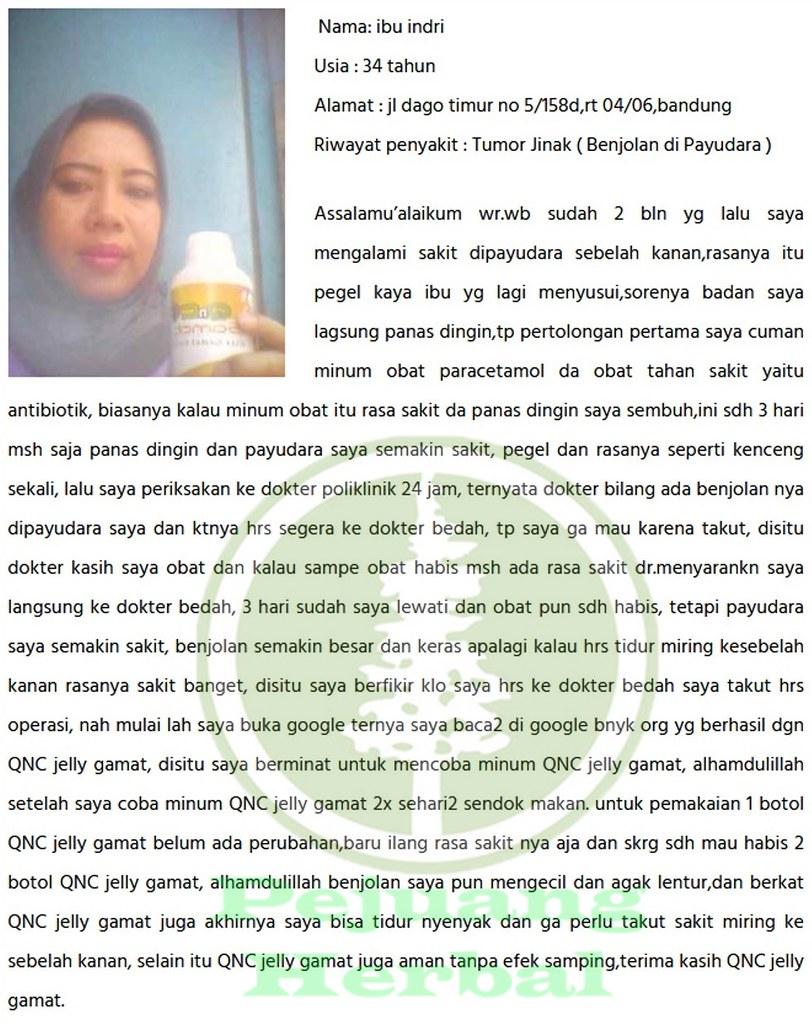 Obat Herbal Tumor Jinak