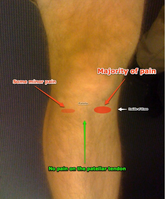 Diagram of My Knee Pain | Just thought I would actaully diag… | Flickr