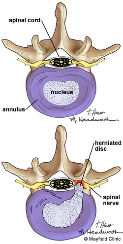 Axial View Of Herniated Lumbar Disc Hello Flickr