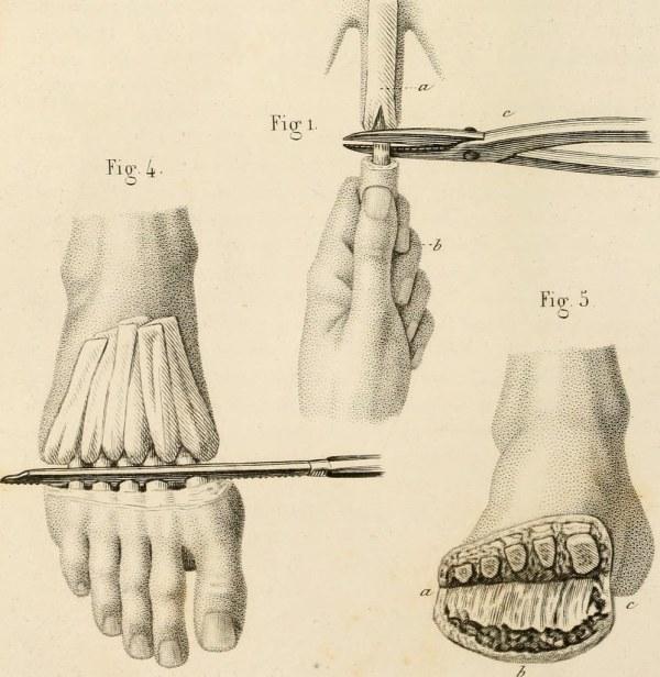 "Image from page 213 of ""Précis iconographique de médecine ..."