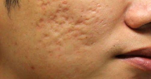 Efek Samping Cream Goji Palsu untuk Kesehatan Konsumen Bahaya Nya