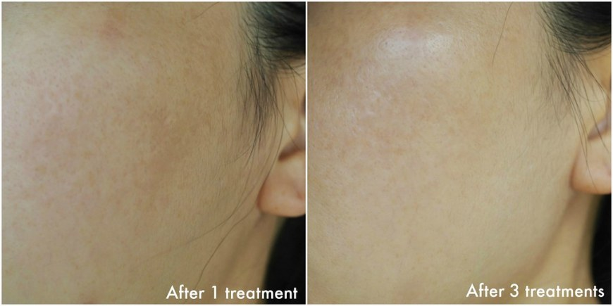 Dual Yellow Brightening Laser Before & After