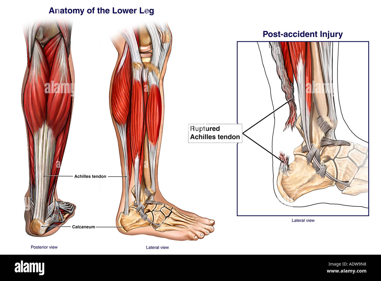 Normal Anatomy Of The Lower Leg Stock Photo