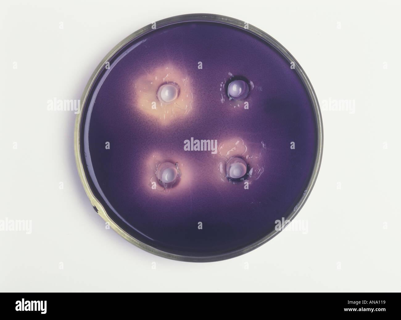 Starch Agar Gallery