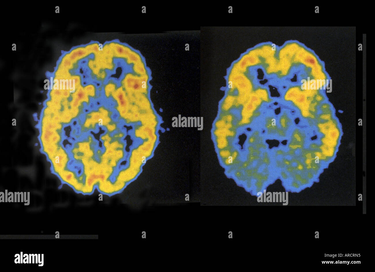 A Pair Of Pet Scans Showing Normal Left And Reduced Right Brain Stock Photo Royalty Free