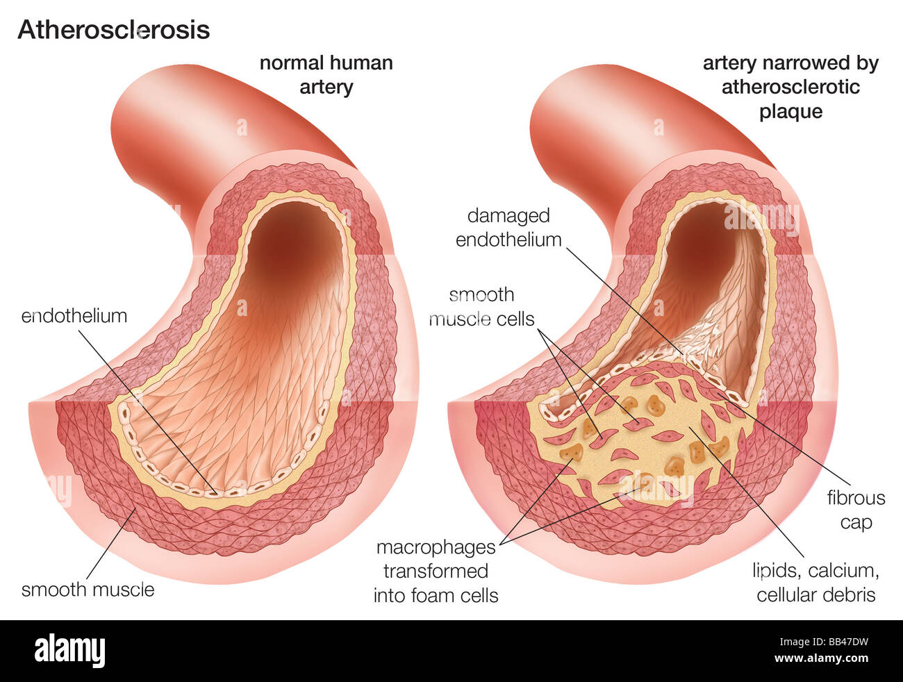 Atherosclerosis Comparison Of A Normal Artery With An