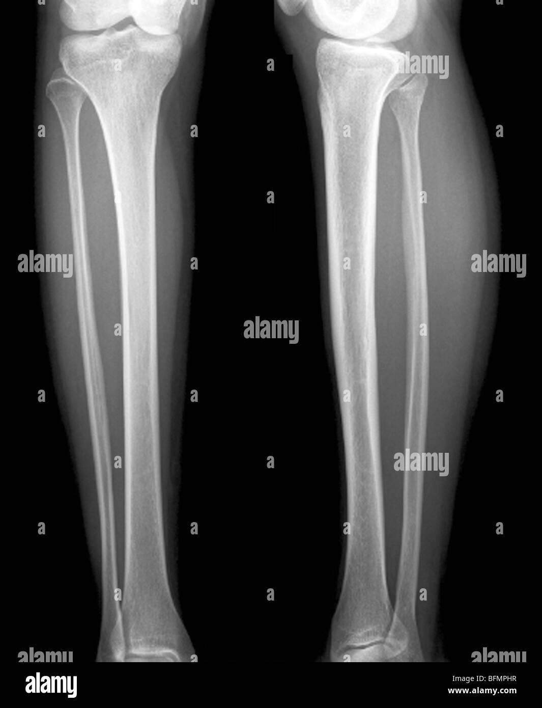 Normal Lower Legs X Ray Stock Photo Royalty Free Image