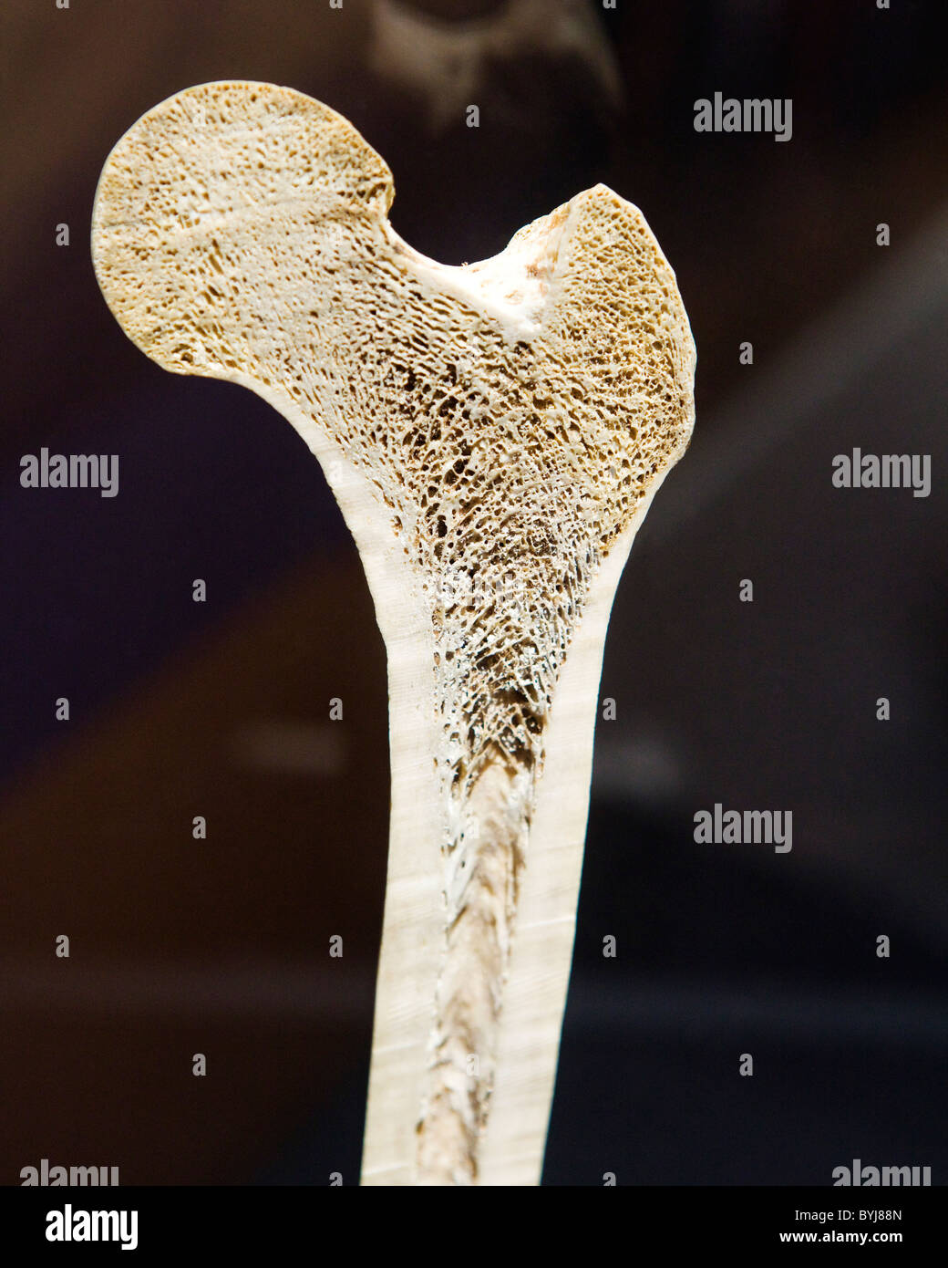 Cross Section View Of A Human Femur Bone Showing Trabecula