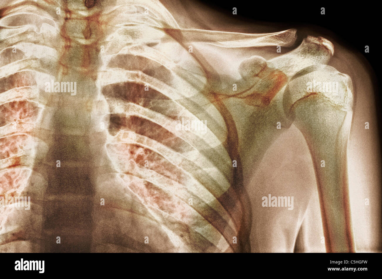 Normal Shoulder X Ray Stock Photos Amp Normal Shoulder X Ray