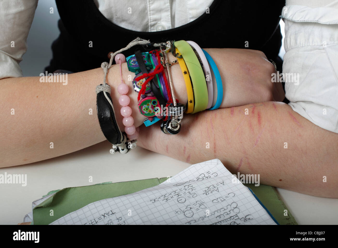 Image Of Self Harm Cuts To The Arm Stock Photo