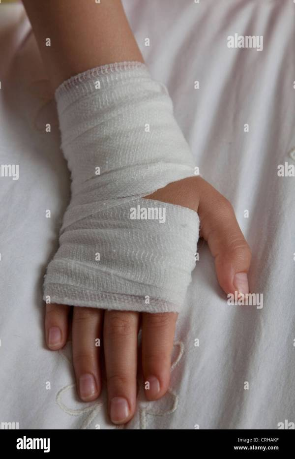 Young girl with bandaged hand Stock Photo - Alamy