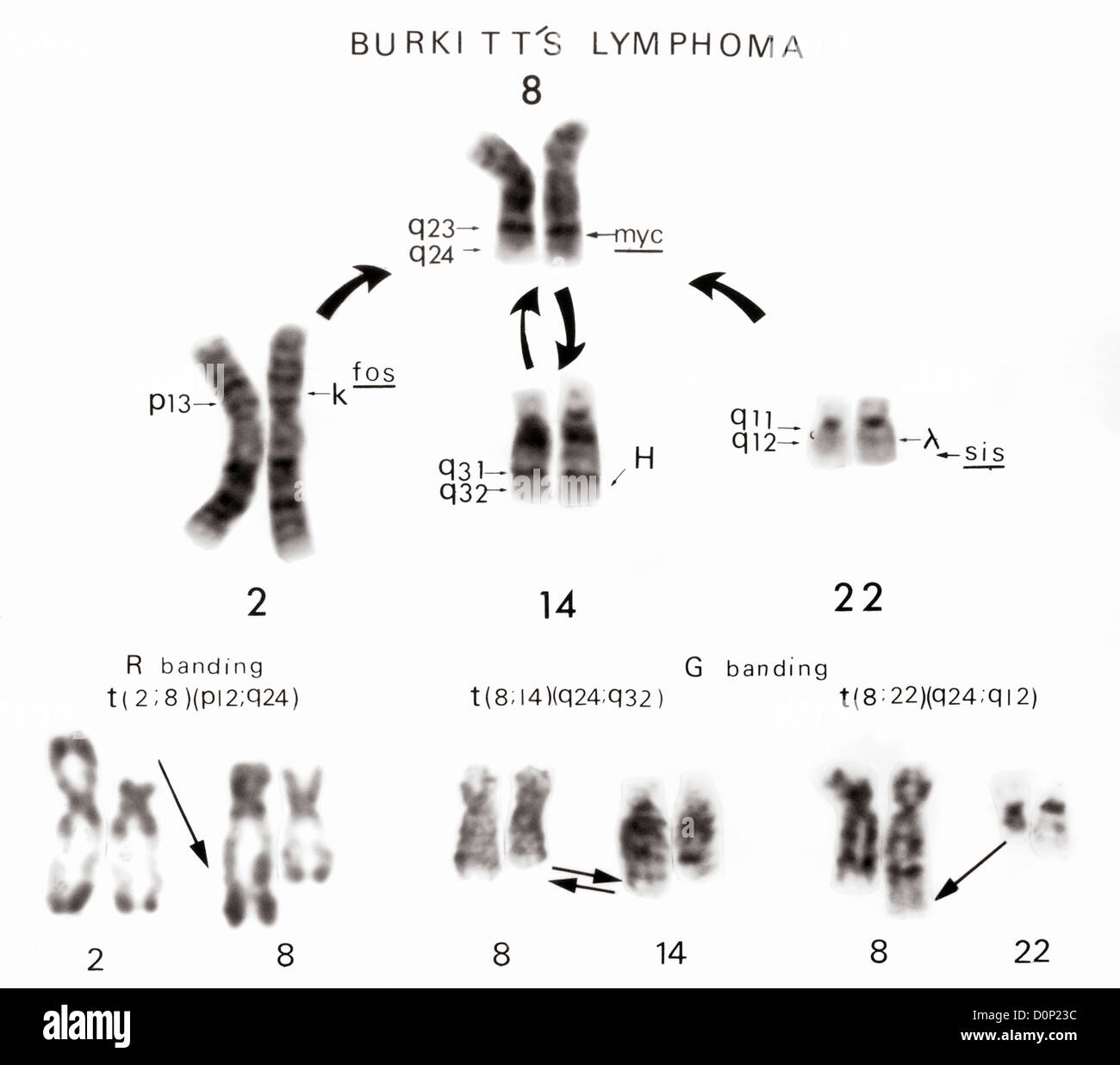 Karyotype Stock Photos Amp Karyotype Stock Images