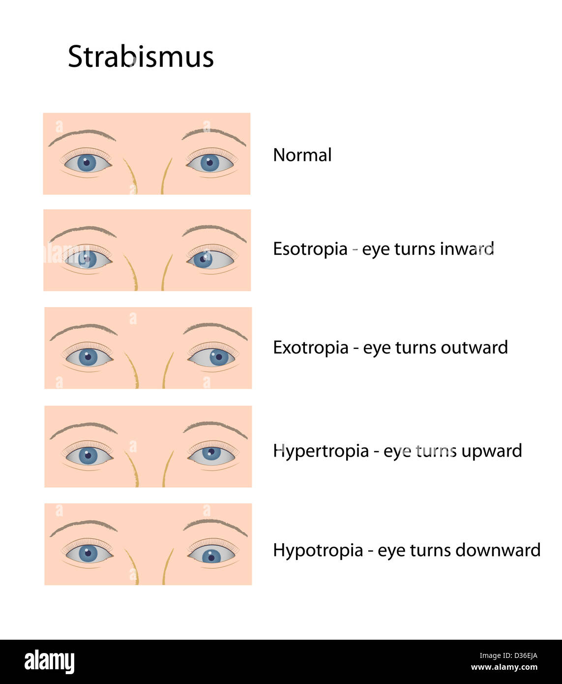 Strabismus Classification Stock Photo Royalty Free Image