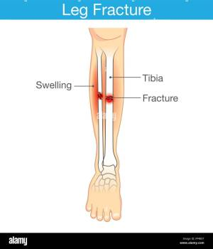 Distal Fibula Fracture Stock Photos & Distal Fibula