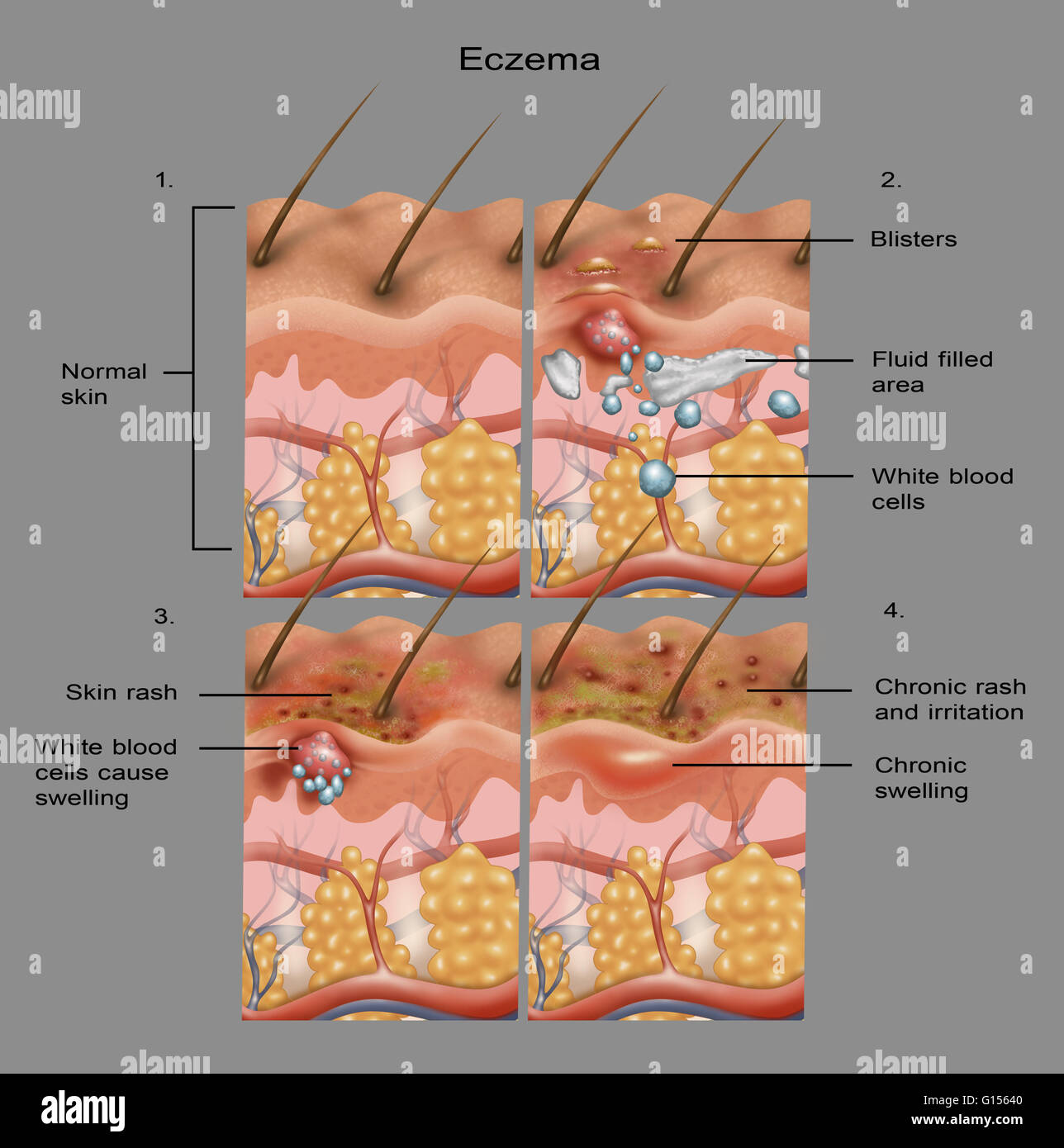 Cross Section Illustration Of The Formation Of Eczema On