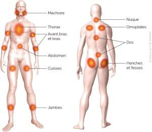 zones-douloureuses-fibromyalgie