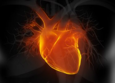Look for Clues When Coding Myocardial Infarction Interventions