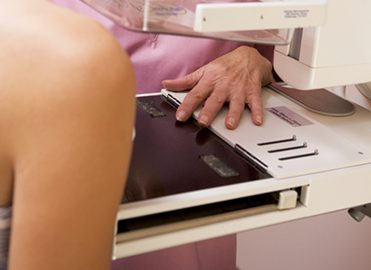 Confirm Breast Cancer Screening Coding