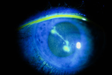 Image result for fluorescein eye image