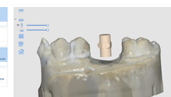 Powderless, Full Color Intraoral Scanning (IOS) Price and