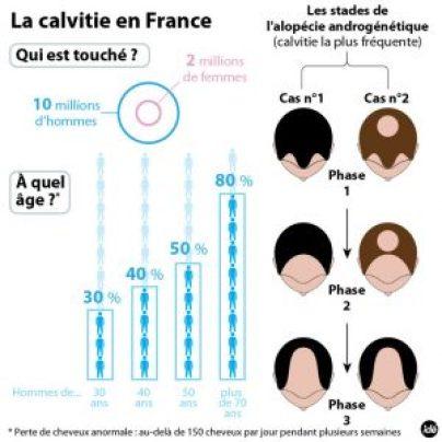 calvitie statistiques