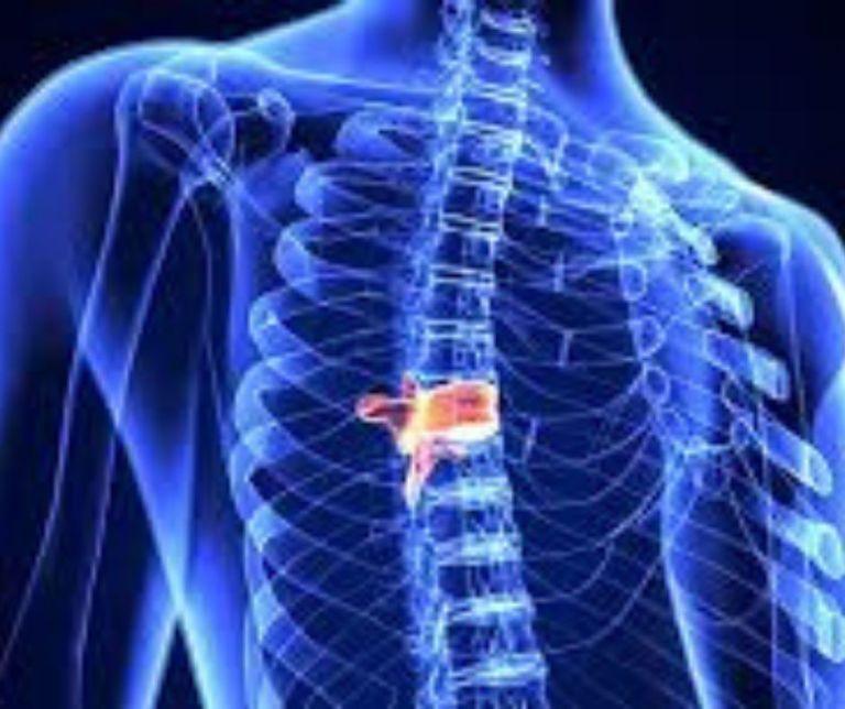 Aguas mineromedicinales en el tratamiento de hernias discales