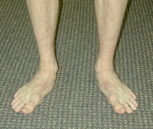 Flatfoot | Flat Foot | Flat Feet | Flat Footed | What is ...