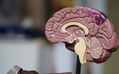 What You Need to Know About Wet Brain—A Guide