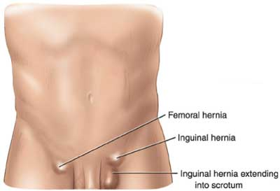 Types of hernias - Inguinal Hernia Bulges