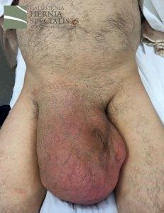 Postop Scrotal Hernia 2016