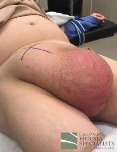 scrotal-hernia-pre-op-lateral