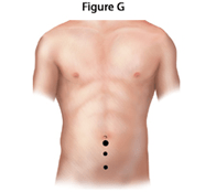 inguinal-repair-fig-g