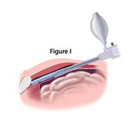 inguinal-repair-fig-i