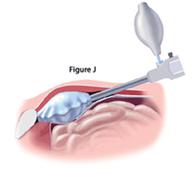 inguinal-repair-fig-j